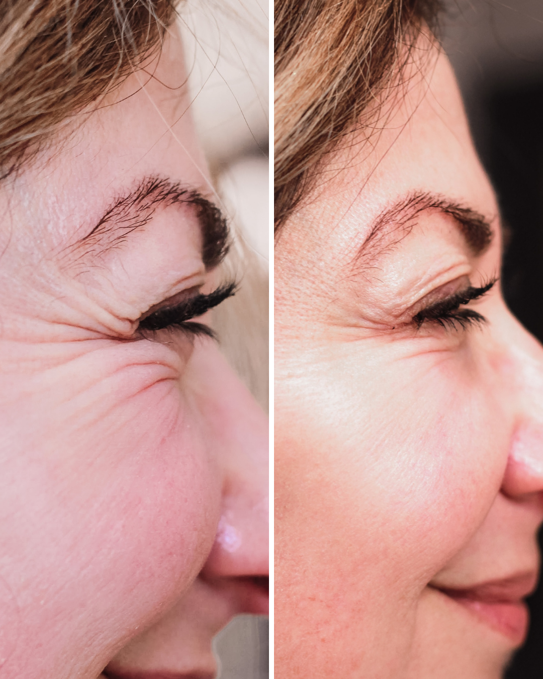 Botox over 40, before and after botox, getting botox done, cost of botox, does botox hurt, crows feet gone after botox
