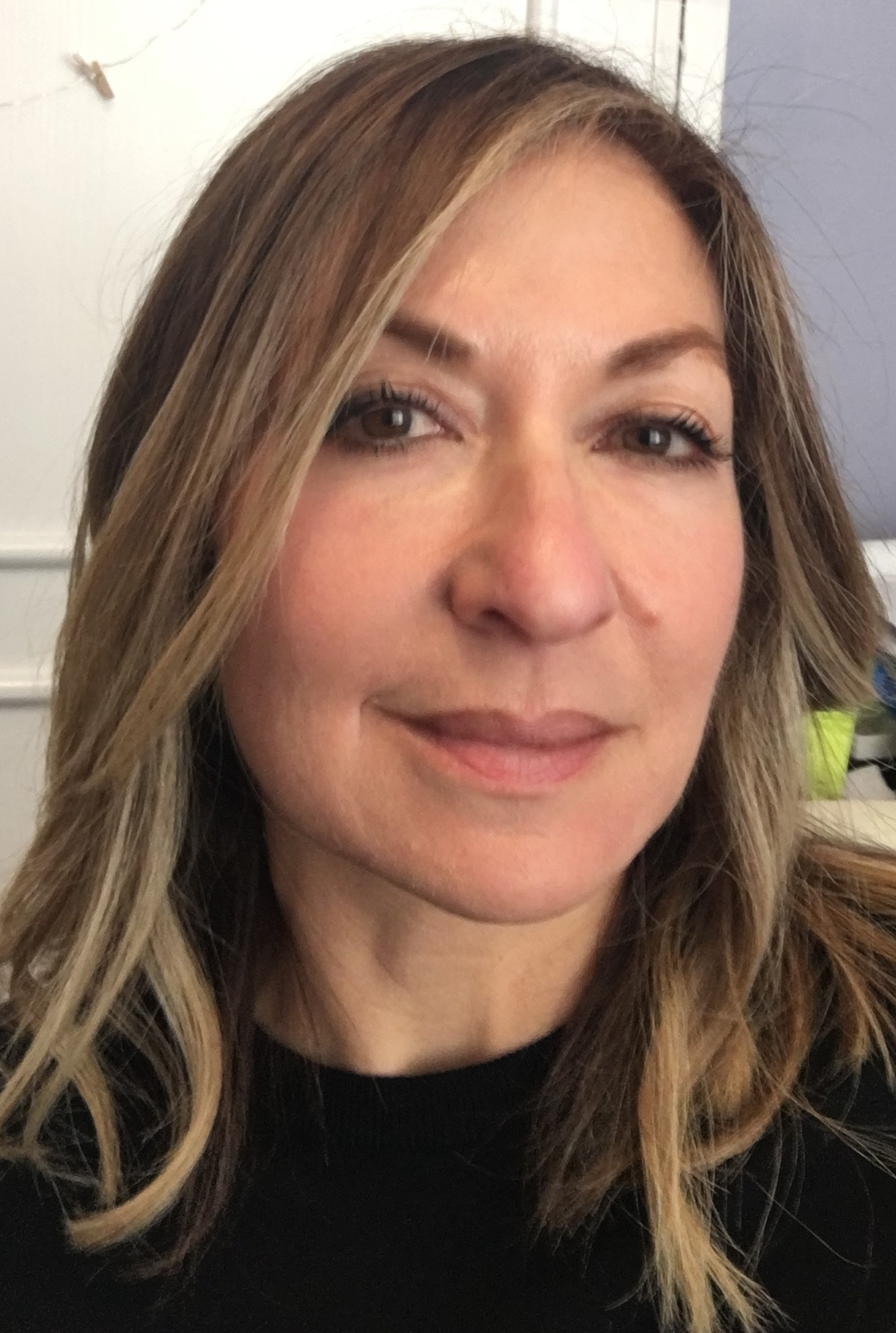 at home and professional micro needling Francine day 14
