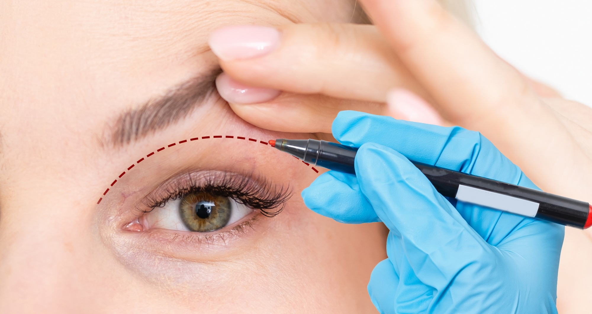 drooping eyelid common beauty questions