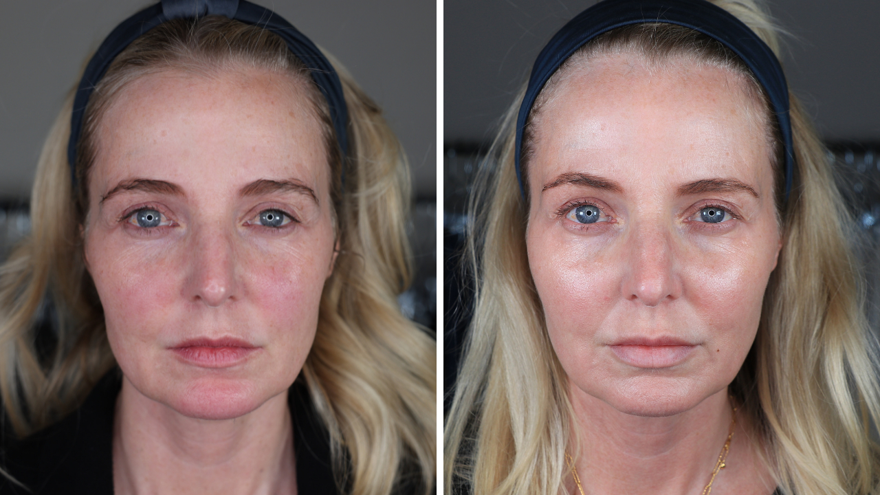 pdo thread lift, botox, lip fillers, ultherapy, ultherapy review, pdo thread lift review, look 10 years younger