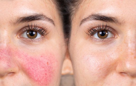 woman's face rosacea on cheeks, summer skin problems
